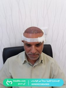 زراعة الشعر في شیراز